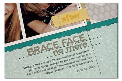 PM-brace-face-no-more03